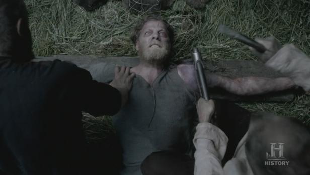 Momento en el que le amputan el brazo a Torstein.